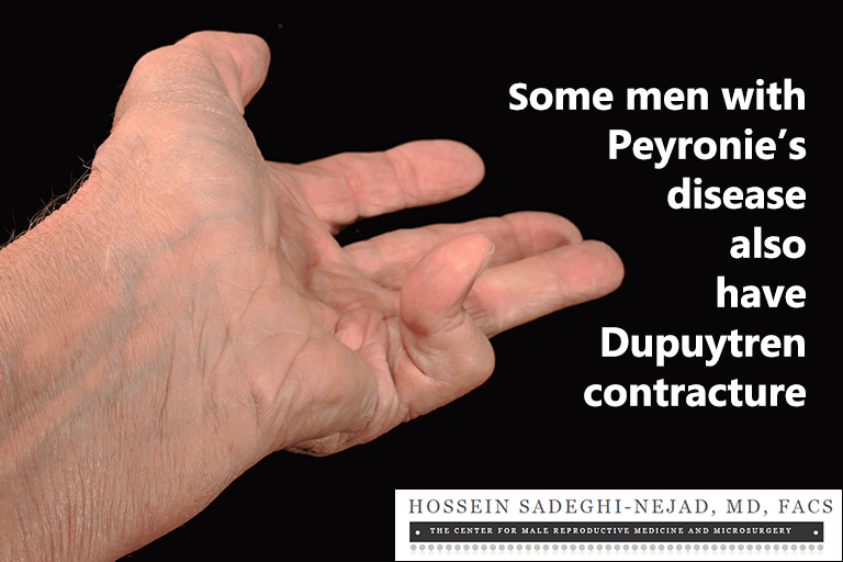Some men with Peyronie's disease also have Dupuytren's contracture.